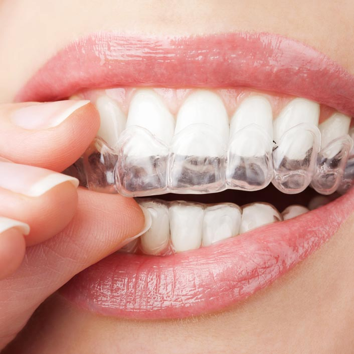 Cosmetic Dentistry - Detail